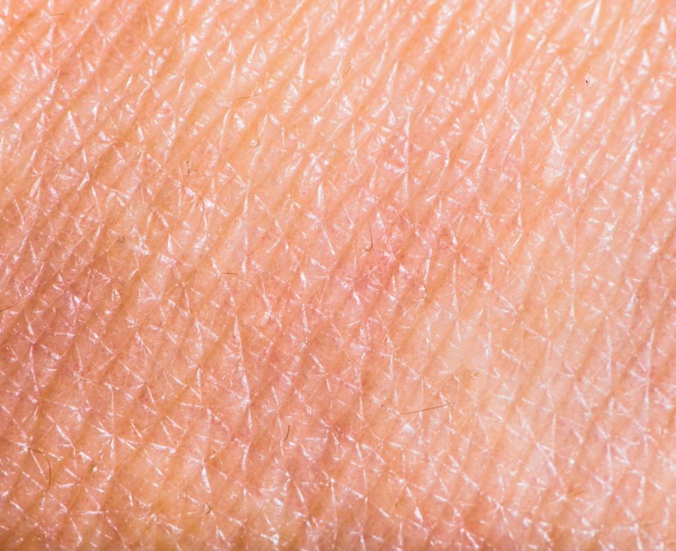 Scabies is caused by the microscopic organism sacoptes scabiei which burrows underneath the skin to deposit its eggs.