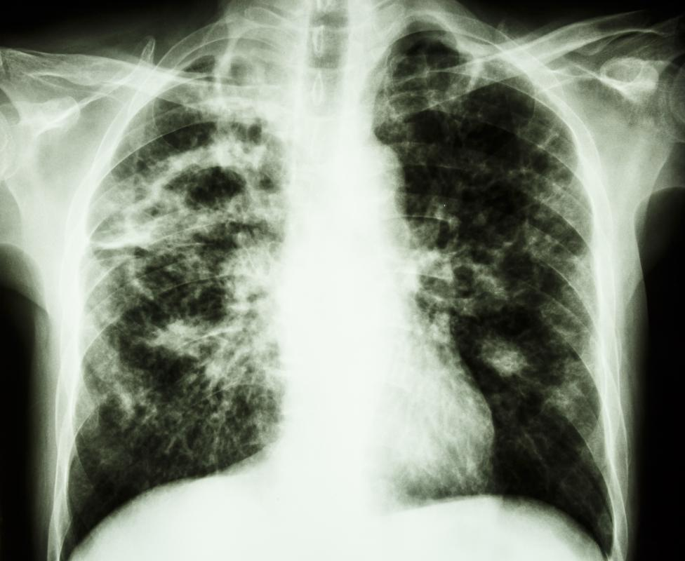 Tuberculosis is an example of a pathogenic bacterium.